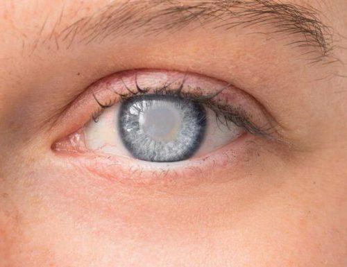 Jaskra (glaucoma) – jak są objawy jaskry?