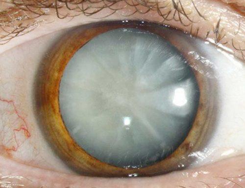Zaćma (katarakta) – profilaktyka i leczenie zaćmy