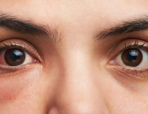 Zapalenie spojówek – leczenie i objawy