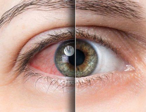 Suche oczy – jakie są objawy, leczenie i profilaktyka?